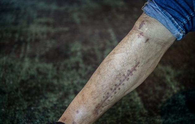 Nyholmi jalg pärast 11 operatsiooni. Foto: fotbollsthlm.se