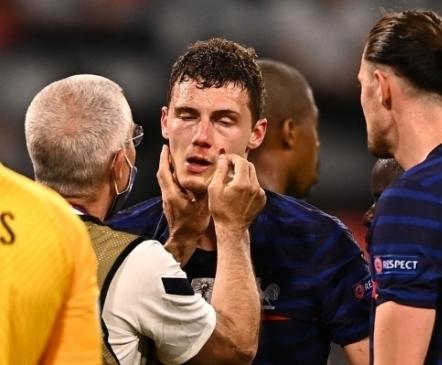 UEFA nõuab prantslastelt aru: miks lasti meelemärkuse kaotanud Pavardil edasi mängida?